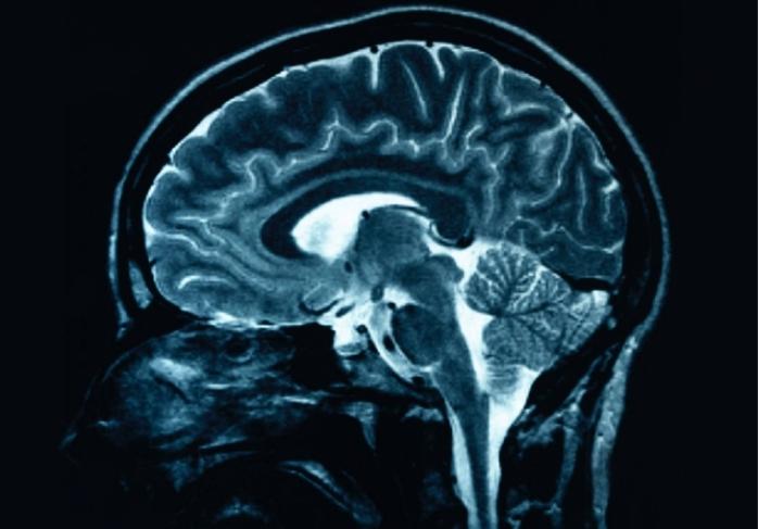 Descoperire inedită a unui cercetător român despre moartea cerebrală