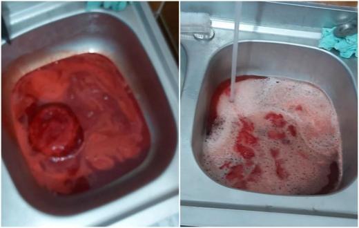 BOMBĂ BIOLOGICĂ! Mii de litri de sânge contaminat ajunge zilnic în sistemul de canalizare, sursă foto: Facebook Emanuel Ungureanu