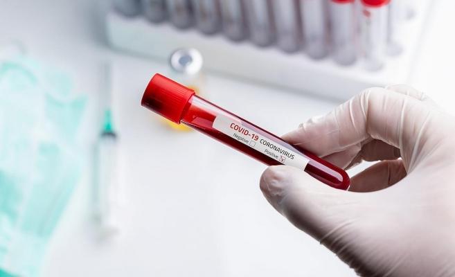Femeie diagnosticata cu coronavirus