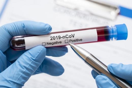 Clujul a redus cu 15% capacitatea de testare COVID-19 în ultima săptămâmă