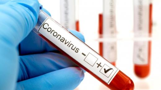 2.721 de cazuri noi de COVID-19 raportate în ultimele 24 de ore