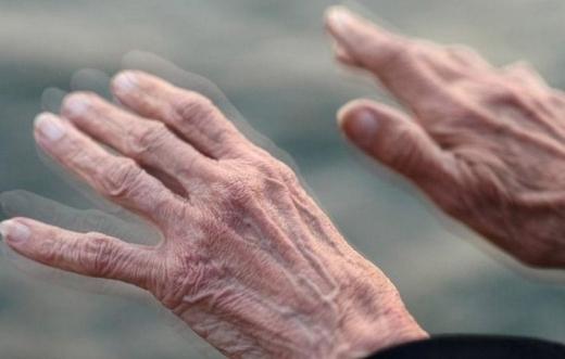 S-a descoperit o posibilă cauză pentru boala Parkinson! Primele semne pot apărea la zeci de ani de la expunere