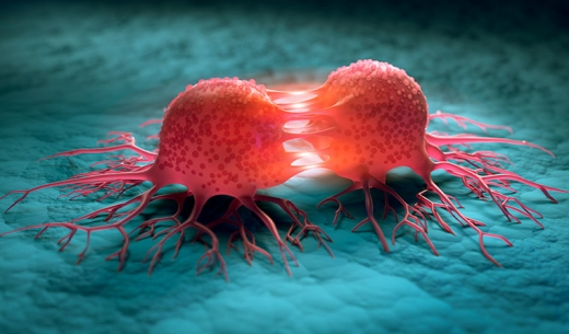 Cancerul pe timp de pandemie. Care sunt semnele pe care nu trebuie să le neglijezi?